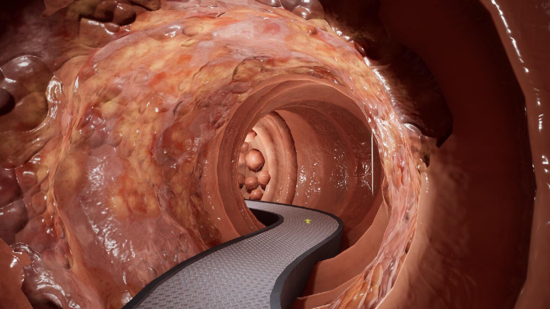 virtuelles darmmodell begehen